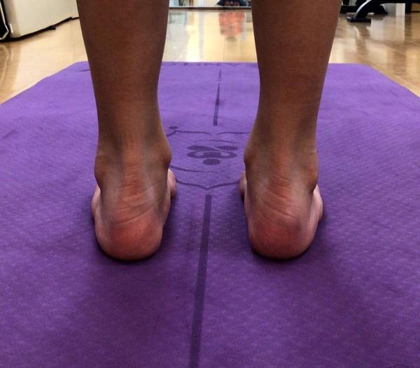 サッカー少年の大腿四頭筋疲労の治療(電気治療の動画あり)